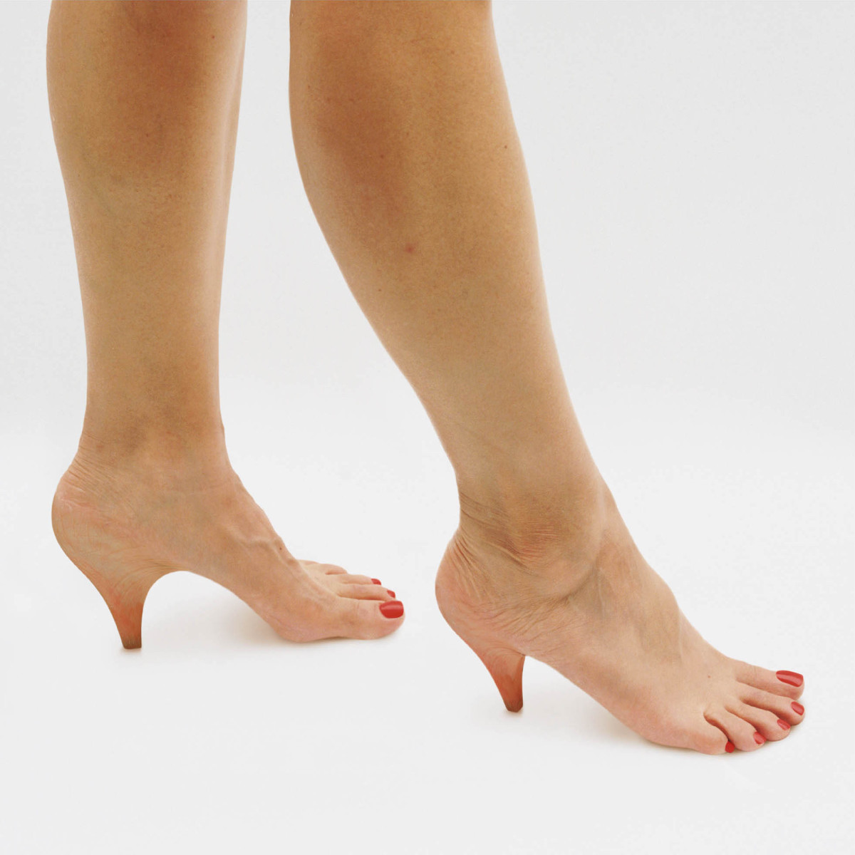 Как убрать шпору на ноге в домашних условиях фото